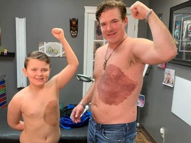 کینیڈا میں ڈیرک سینیئر نے اپنے بیٹے کی پیدائشی نشان خود اپنے جسم پر ٹیٹو سے اسی طرح کا نشان بنوایا رکھا ہے۔  فوٹو: کینیڈا گزٹ