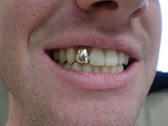 جرمنی میں فوت شدگانی والے افراد کے منہ سے سونے کے دانت پائے جانے والے گورکن غلطی۔  فوٹو: فائل