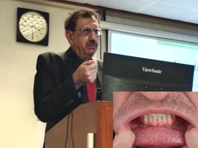 کراچی کینسر رجسٹری کے سربراہ ڈاکٹر شاہد پرویز نے کہا ہے کہ کراچی کے مردوں میں منہ اور خواتین میں چھاتی کے سرطان کی شرح تشویشناک حد تک بڑھ رہی ہے۔ فوٹو: بشکریہ پی ایم ڈی سی، آئی سی سی بی ایس