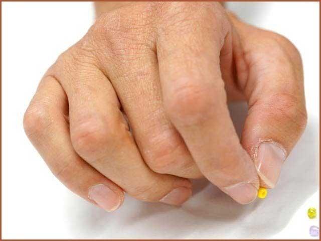 حرام مغز میں چوٹ کا شکار ہونے والے افراد کے ہاتھوں کو اس قابل کیا گیا ہے کہ وہ موتی جیسی باریک چیز بھی اٹھاسکتے ہیں (فوٹو: فیوچراٹی)