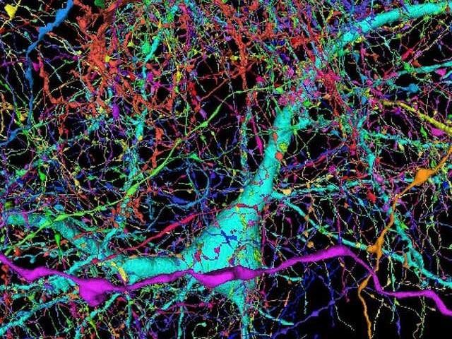 تصویر میں ایک اعصابی خلیے سے 4000 رابطے دیکھے جاسکتے ہیں۔ فوٹو: بشکریہ گوگل اور ہارورڈ