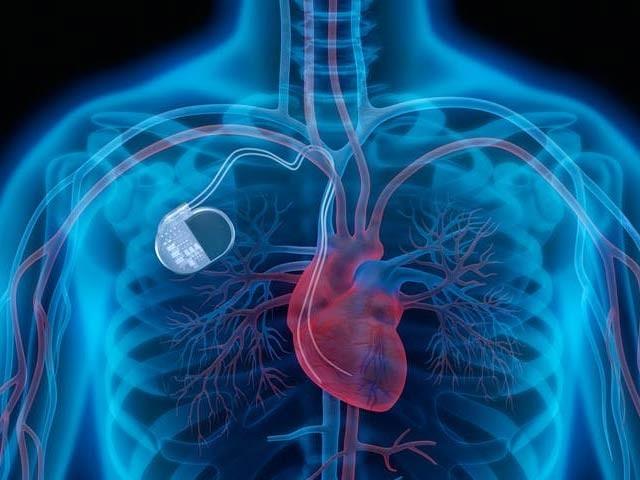 چینی ماہرین نے انسانی دل کی میکانکی حرکت سے کام کرنے والے پیس میکر کی تیاری میں اہم پیشرفت حاصل کی ہے۔ فوٹو: فائل
