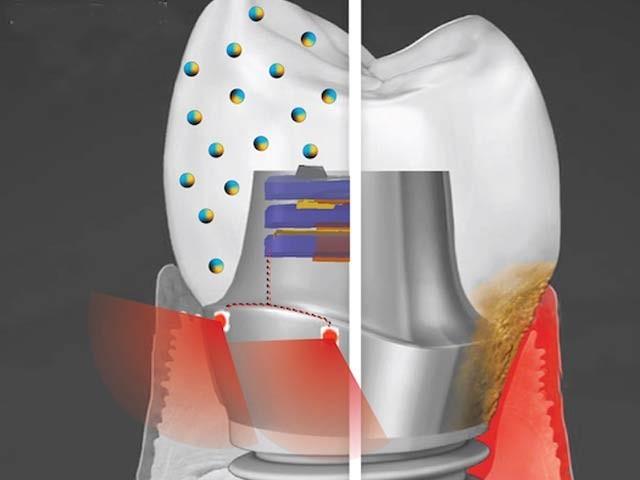 پنسلوانیہ یونیورسٹی کے سائنسدانوں کے مصنوعی دانت کا خاکہ نمایاں ہے جو اپنی بجلی بناکر مسوڑھوں کو تندرست رکھتا ہے اور دانتوں کی خرابی کو بھی روکتا ہے۔ فوٹو: بشکریہ جامعہ پنسلوانیہ