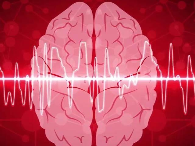 برطانوی ادویہ ساز کمپنی نیوروفِن نے دردِ سر کم کرنے والا میوزک تیار کیا ہے۔ فوٹو: فائل