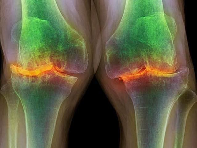 اس رنگین ایکسرے میں 87 سالہ بوڑھے فرد کے متاثرہ گھٹنے کو دیکھا جاسکتا ہے جس میں کرکری ہڈی بری طرح متاثر ہوئی ہے۔ اب ایک مصنوعی چکنائی والے مائع سے اس کے علاج میں ایک اہم پیشرفت ہوئی ہے۔ فوٹو: نیوسائنٹسٹ