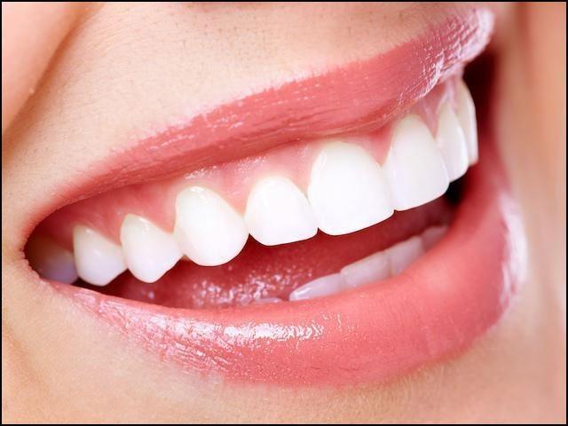 اس طریقہ علاج سے دانتوں پر 'پلاک' کا خاتمہ ہوا جبکہ دانتوں کو کھوکھلا کرنے والے جرثومے بھی ہلاک ہوگئے۔ (فوٹو: انٹرنیٹ)